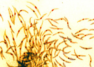 Malaria sporozoites. Photo credit: NIAID, WikiCommons 2015, CC-BY2.0.