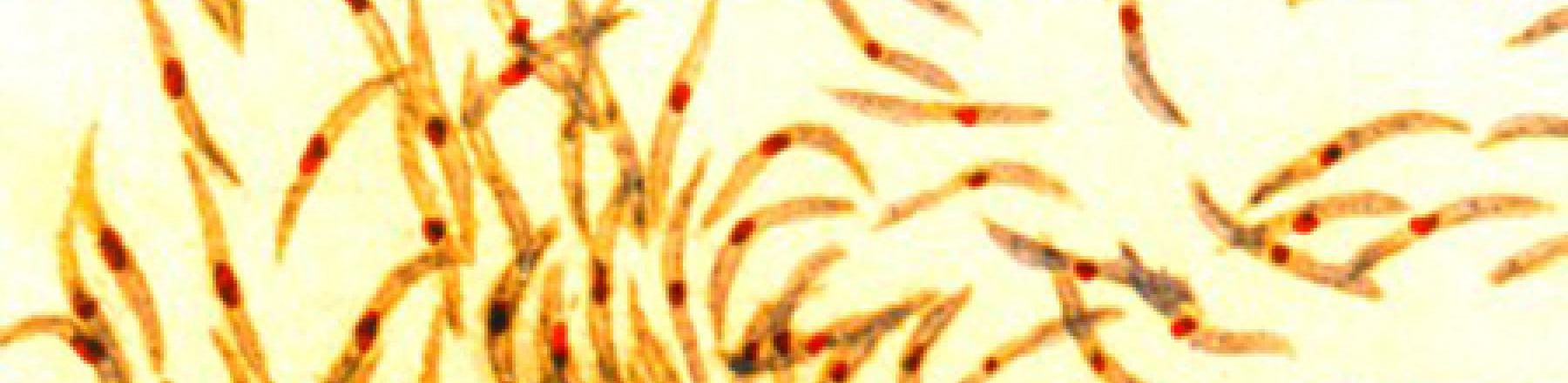 Malaria sporozoites. Photo credit: NIAID, WikiCommons 2015, CC-BY2.0.